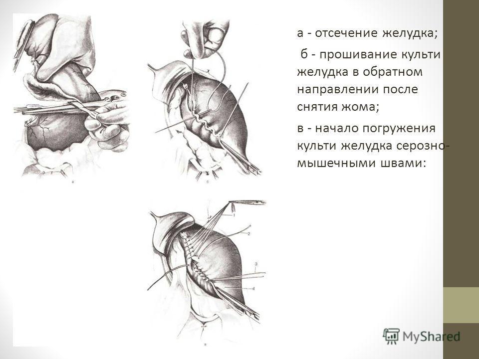 а - отсечение желудка; б - прошивание культи желудка в обратном направлении после снятия жома; в - начало погружения культи желудка серозно- мышечными швами: