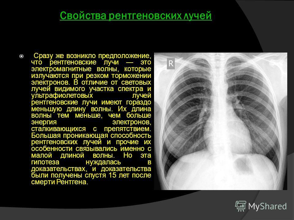 Свойства рентгеновских лучей Сразу же возникло предположение, что рентгеновские лучи это электромагнитные волны, которые излучаются при резком торможении электронов. В отличие от световых лучей видимого участка спектра и ультрафиолетовых лучей рентге