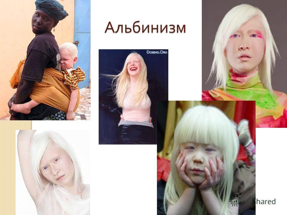 Альбинизм Альбинизм