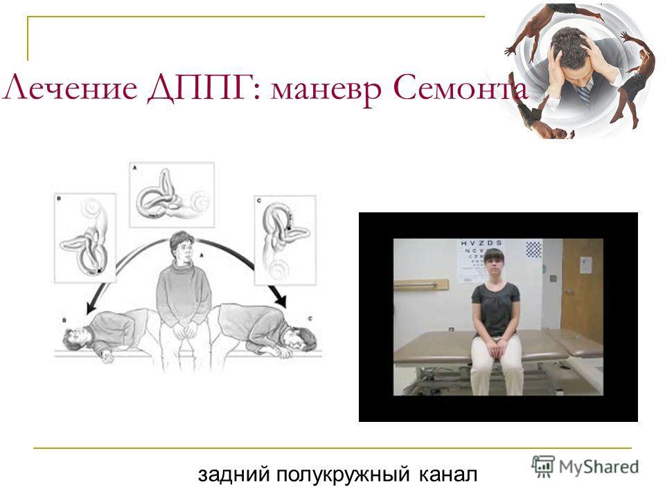 Лечение ДППГ: маневр Семонта задний полукружный канал