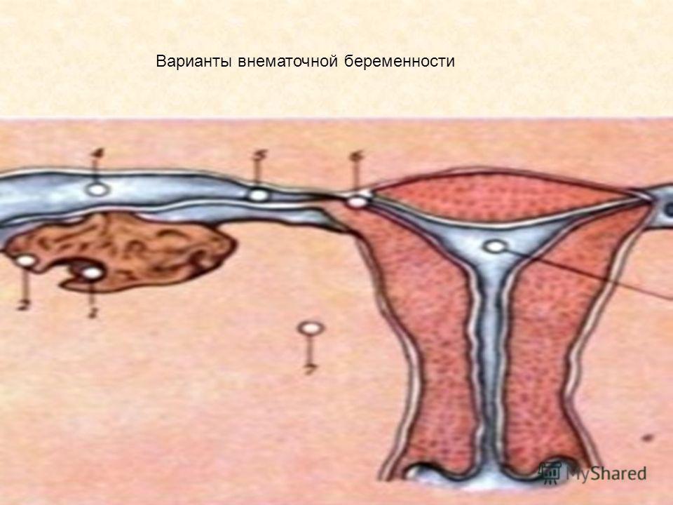 трусы, она после внематочной нет тяги к сексу очень порядочная умная