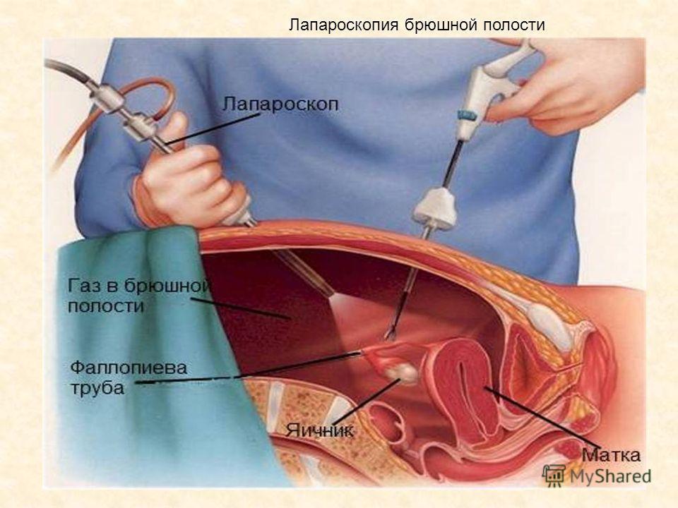 Лапароскопия брюшной полости