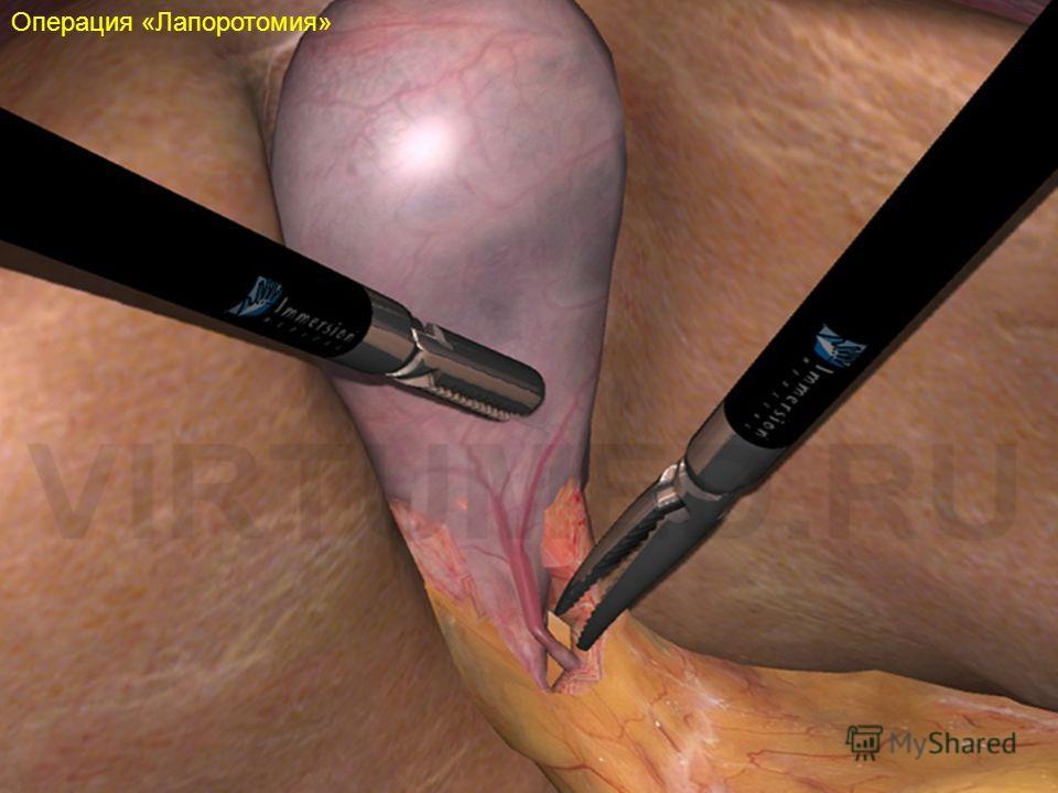 Операция «Лапоротомия»