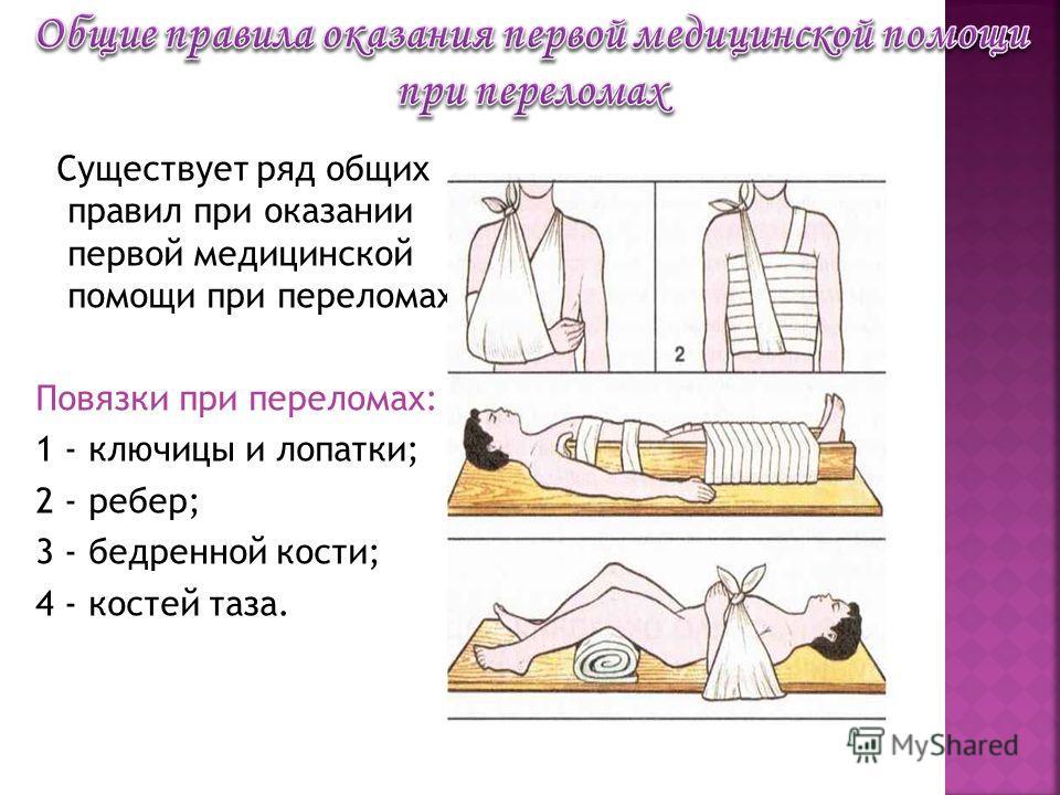 Существует ряд общих правил при оказании первой медицинской помощи при переломах Повязки при переломах: 1 - ключицы и лопатки; 2 - ребер; 3 - бедренной кости; 4 - костей таза.