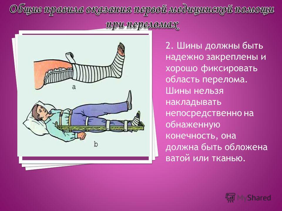 2. Шины должны быть надежно закреплены и хорошо фиксировать область перелома. Шины нельзя накладывать непосредственно на обнаженную конечность, она должна быть обложена ватой или тканью.
