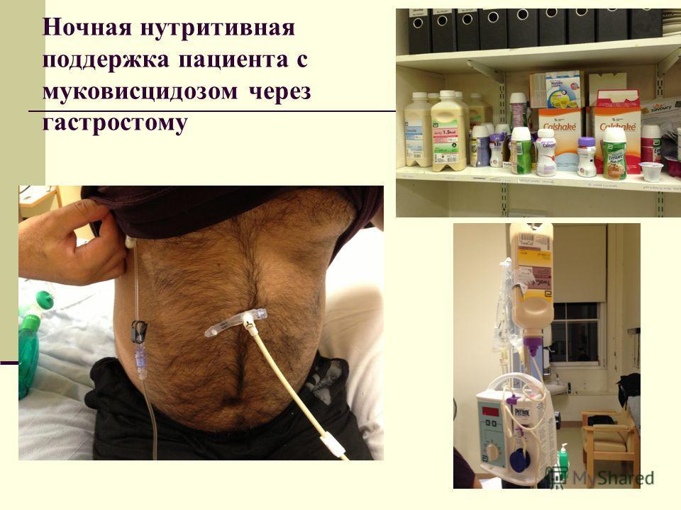 Ночная нутритивная поддержка пациента с муковисцидозом через гастростому