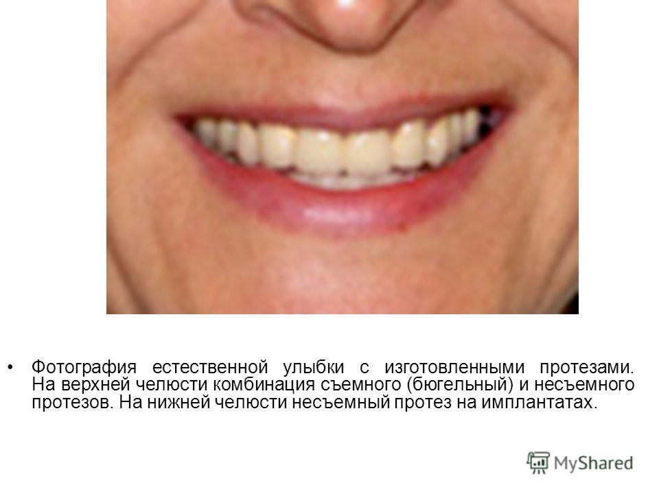 Фотография естественной улыбки с изготовленными протезами. На верхней челюсти комбинация съемного (бюгельный) и несъемного протезов. На нижней челюсти несъемный протез на имплантатах.