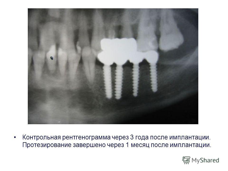Контрольная рентгенограмма через 3 года после имплантации. Протезирование завершено через 1 месяц после имплантации.