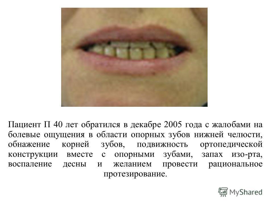 Пациент П 40 лет обратился в декабре 2005 года с жалобами на болевые ощущения в области опорных зубов нижней челюсти, обнажение корней зубов, подвижность ортопедической конструкции вместе с опорными зубами, запах изо-рта, воспаление десны и желанием