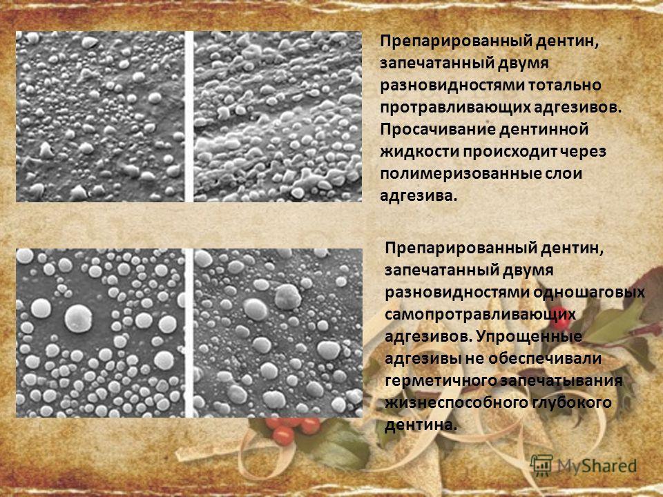 Препарированный дентин, запечатанный двумя разновидностями тотально протравливающих адгезивов. Просачивание дентинной жидкости происходит через полимеризованные слои адгезива. Препарированный дентин, запечатанный двумя разновидностями одношаговых сам