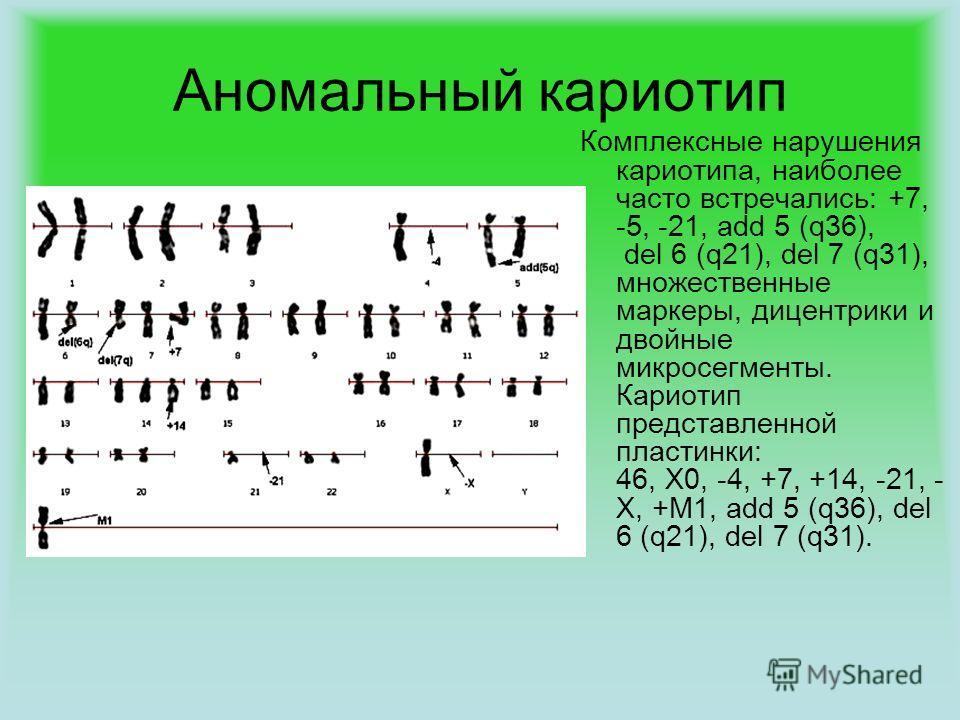 Аномальный кариотип Комплексные нарушения кариотипа, наиболее часто встречались: +7, -5, -21, add 5 (q36), del 6 (q21), del 7 (q31), множественные маркеры, дицентрики и двойные микросегменты. Кариотип представленной пластинки: 46, Х0, -4, +7, +14, -2