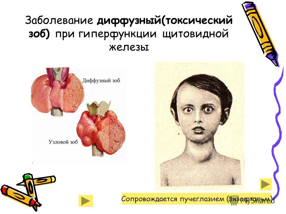 Заболевание диффузный(токсический зоб) при гиперфункции щитовидной железы Сопровождается пучеглазием (экзофтальм)