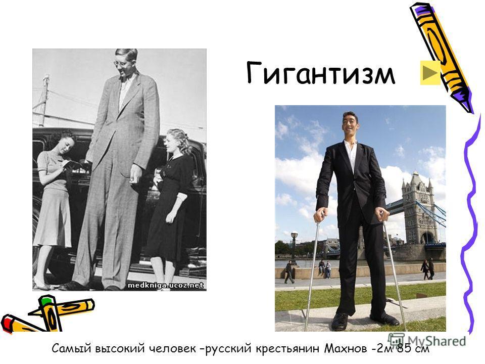 Гигантизм Самый высокий человек –русский крестьянин Махнов -2м 85 см