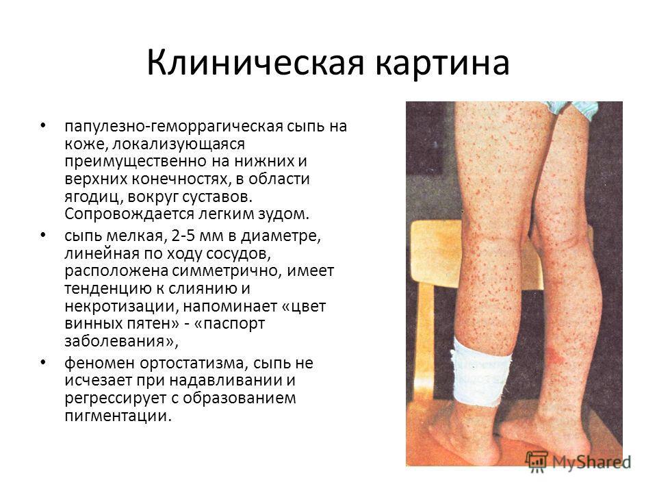 Клиническая картина папулезно-геморрагическая сыпь на коже, локализующаяся преимущественно на нижних и верхних конечностях, в области ягодиц, вокруг суставов. Сопровождается легким зудом. сыпь мелкая, 2-5 мм в диаметре, линейная по ходу сосудов, расп