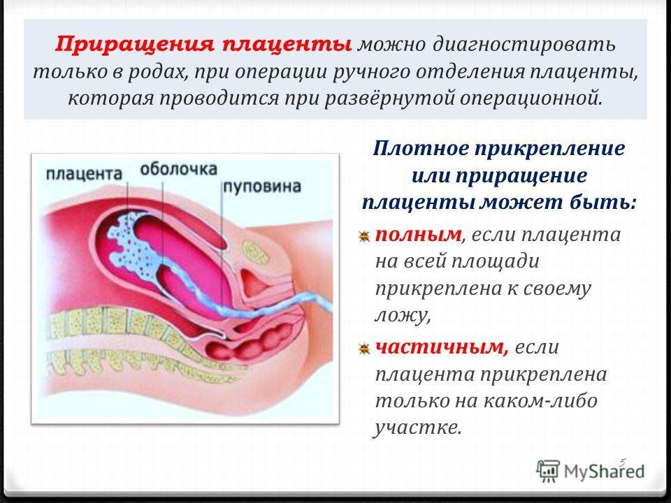 Оргазм при отслойке плаценты качестве