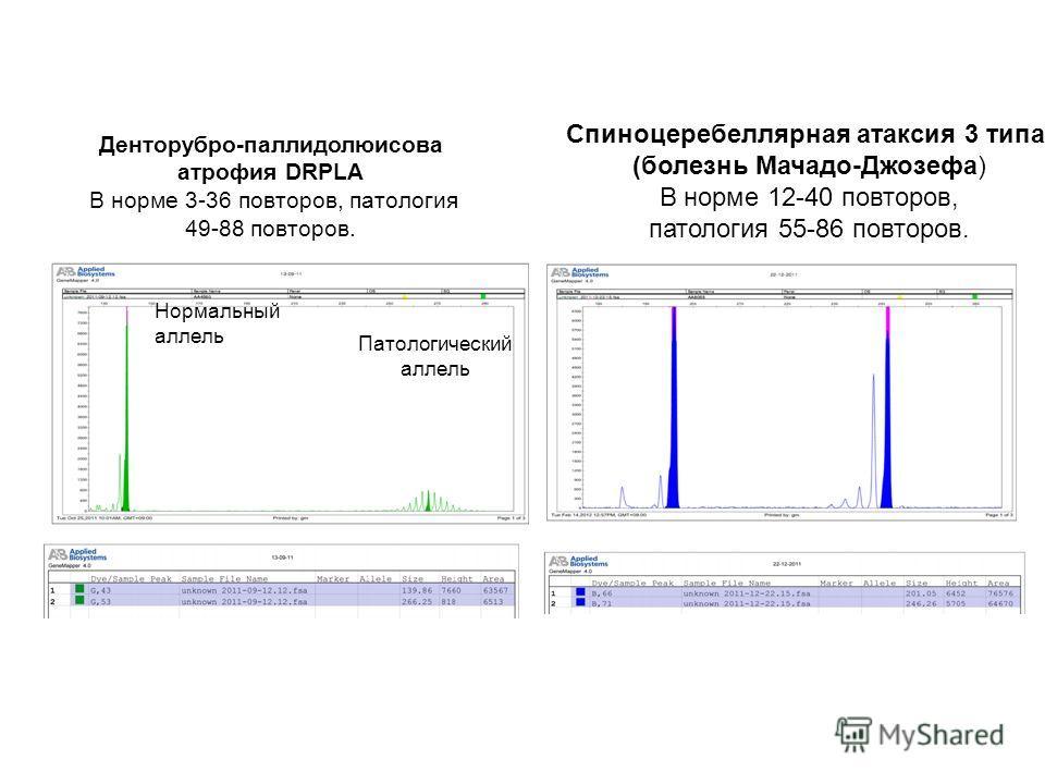 Денторубро-паллидолюисова атрофия DRPLA В норме 3-36 повторов, патология 49-88 повторов. Нормальный аллель Патологический аллель Спиноцеребеллярная атаксия 3 типа (болезнь Мачадо-Джозефа) В норме 12-40 повторов, патология 55-86 повторов.
