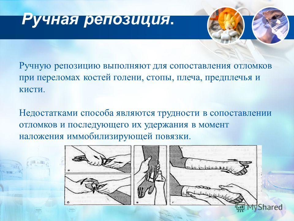 Ручная репозиция. Ручную репозицию выполняют для сопоставления отломков при переломах костей голени, стопы, плеча, предплечья и кисти. Недостатками способа являются трудности в сопоставлении отломков и последующего их удержания в момент наложения имм