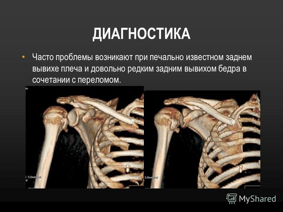 ДИАГНОСТИКА Часто проблемы возникают при печально известном заднем вывихе плеча и довольно редким задним вывихом бедра в сочетании с переломом.