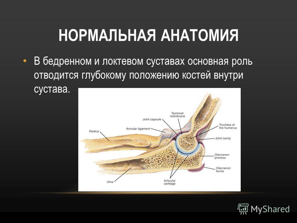 НОРМАЛЬНАЯ АНАТОМИЯ В бедренном и локтевом суставах основная роль отводится глубокому положению костей внутри сустава.