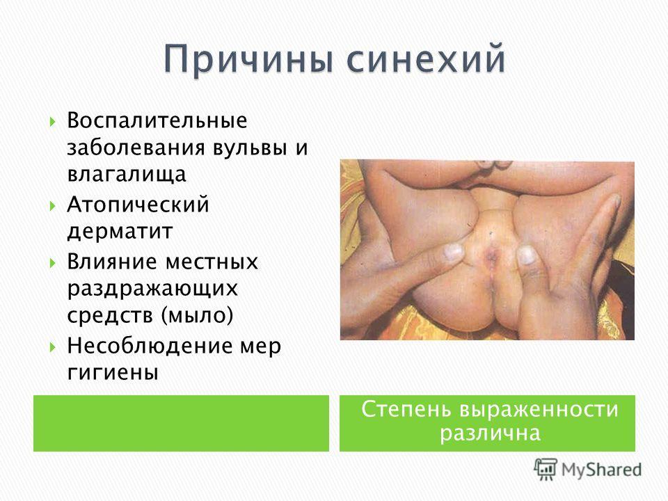 Степень выраженности различна Воспалительные заболевания вульвы и влагалища Атопический дерматит Влияние местных раздражающих средств (мыло) Несоблюдение мер гигиены
