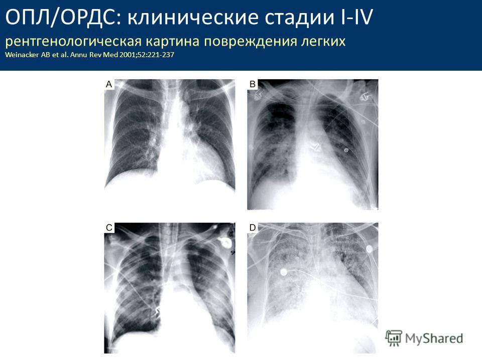 ОПЛ/ОРДС: клинические стадии I-IV рентгенологическая картина повреждения легких Weinacker AB et al. Annu Rev Med 2001;52:221-237
