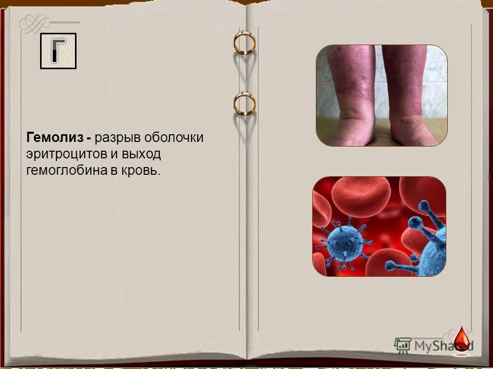 Гемолиз - разрыв оболочки эритроцитов и выход гемоглобина в кровь.