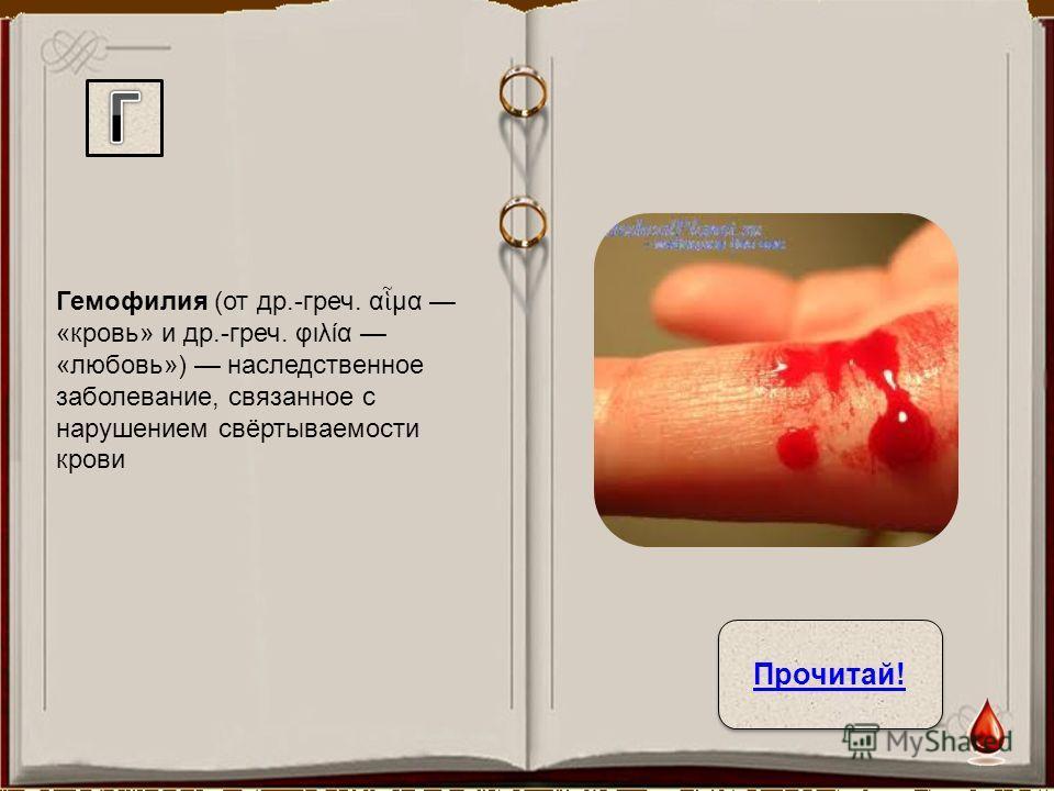 Гемофилия (от др.-греч. α μα «кровь» и др.-греч. φιλία «любовь») наследственное заболевание, связанное с нарушением свёртываемости крови Прочитай!
