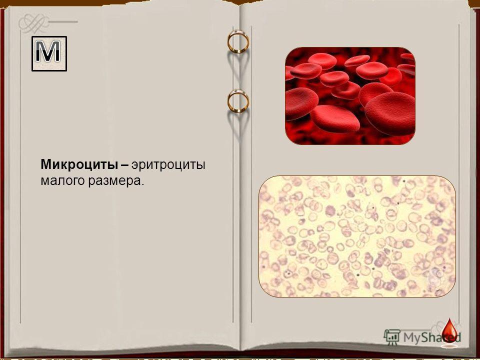 Микроциты – эритроциты малого размера.