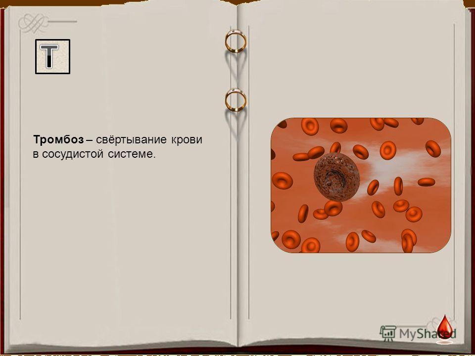 Тромбоз – свёртывание крови в сосудистой системе.