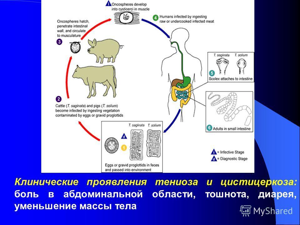Клинические проявления тениоза и цистицеркоза: боль в абдоминальной области, тошнота, диарея, уменьшение массы тела