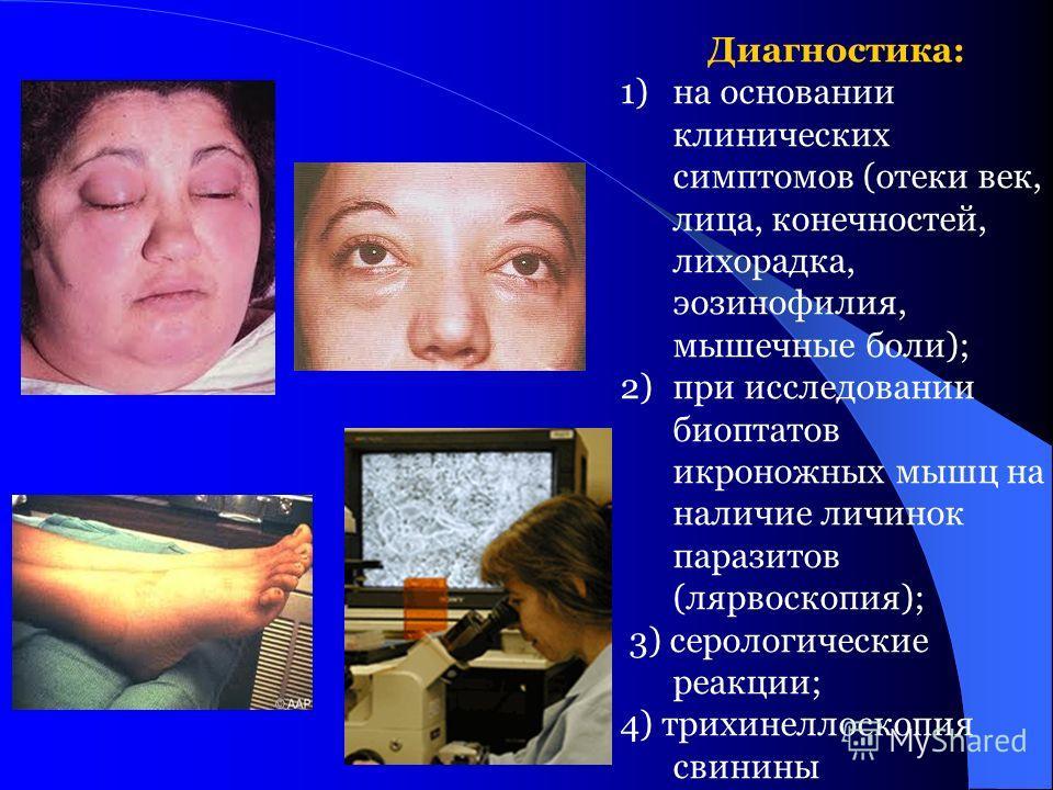 Диагностика: 1)на основании клинических симптомов (отеки век, лица, конечностей, лихорадка, эозинофилия, мышечные боли); 2)при исследовании биоптатов икроножных мышц на наличие личинок паразитов (лярвоскопия); 3) серологические реакции; 4) трихинелло