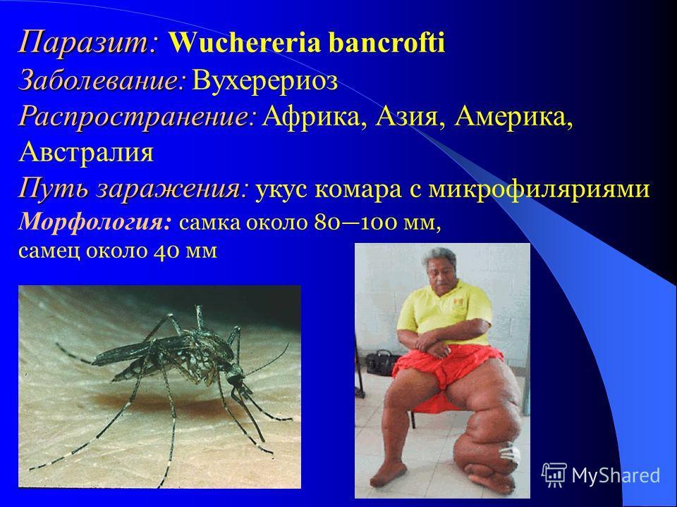 Паразит: Паразит: Wuchereria bancrofti Заболевание: Заболевание: Вухерериоз Распространение: Распространение: Африка, Азия, Америка, Австралия Путь заражения: Путь заражения: укус комара с микрофиляриями Морфология: самка около 80100 мм, самец около