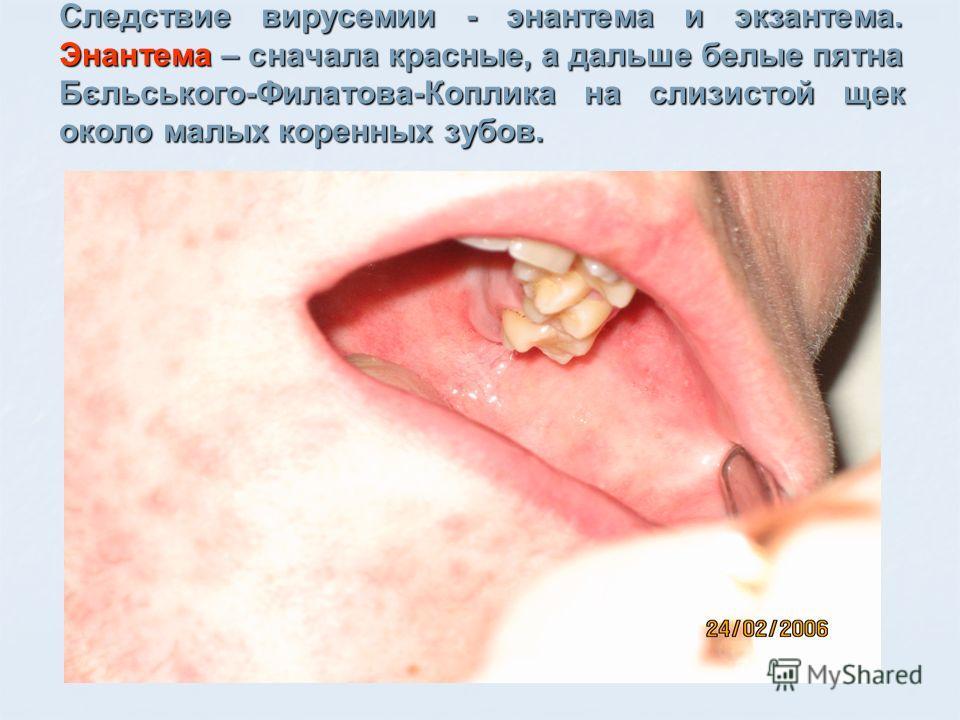 Следствие вирусемии - энантема и экзантема. Энантема – сначала красные, а дальше белые пятна Бєльського-Филатова-Коплика на слизистой щек около малых коренных зубов.