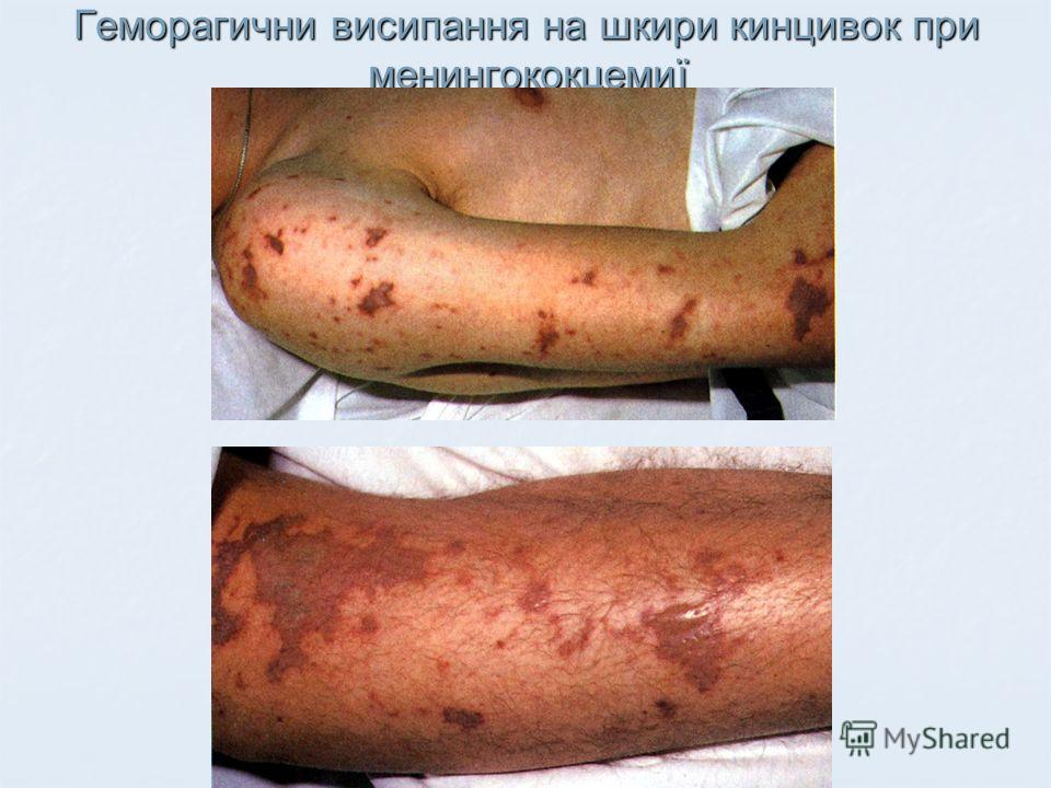 Геморагични висипання на шкири кинцивок при менингококцемиї