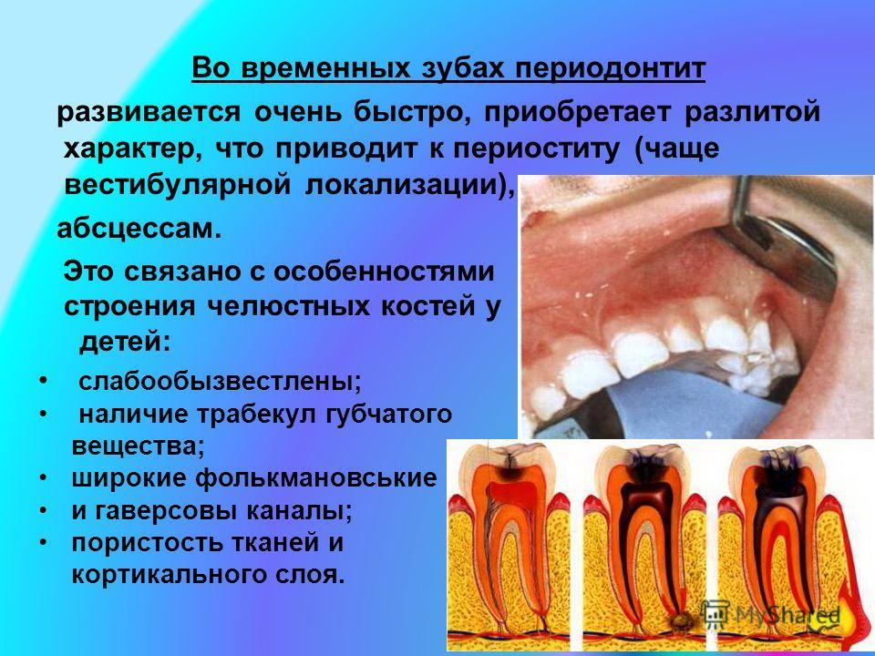 Во временных зубах периодонтит развивается очень быстро, приобретает разлитой характер, что приводит к периоститу (чаще вестибулярной локализации), абсцессам. Это связано с особенностями строения челюстных костей у детей: слабообызвестлены; наличие т