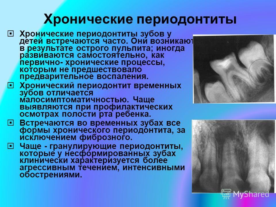 Хронические периодонтиты Хронические периодонтиты зубов у детей встречаются часто. Они возникают в результате острого пульпита; иногда развиваются самостоятельно, как первично- хронические процессы, которым не предшествовало предварительное воспалени