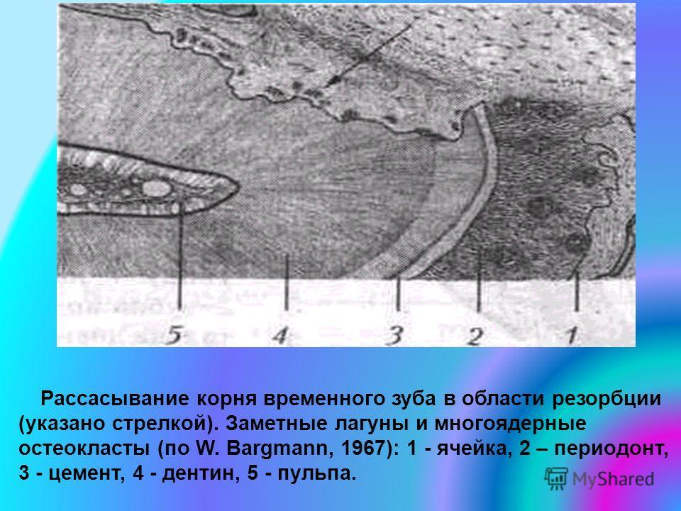 Рассасывание корня временного зуба в области резорбции (указано стрелкой). Заметные лагуны и многоядерные остеокласты (по W. Bargmann, 1967): 1 - ячейка, 2 – периодонт, 3 - цемент, 4 - дентин, 5 - пульпа.