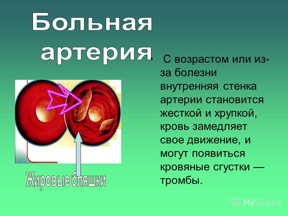 С возрастом или из- за болезни внутренняя стенка артерии становится жесткой и хрупкой, кровь замедляет свое движение, и могут появиться кровяные сгустки тромбы.