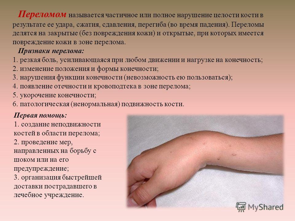 Переломом называется частичное или полное нарушение целости кости в результате ее удара, сжатия, сдавления, перегиба ( во время падения ). Переломы делятся на закрытые ( без повреждения кожи ) и открытые, при которых имеется повреждение кожи в зоне п