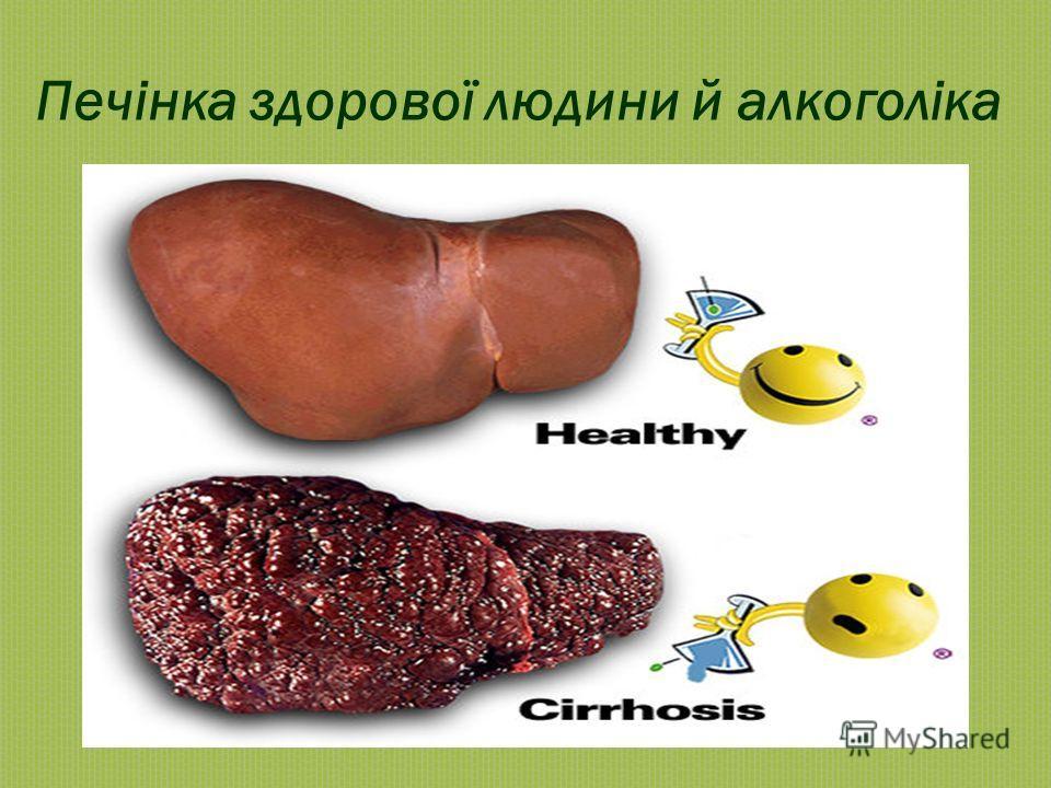Печінка здорової людини й алкоголіка