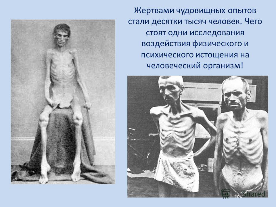 Жертвами чудовищных опытов стали десятки тысяч человек. Чего стоят одни исследования воздействия физического и психического истощения на человеческий организм!