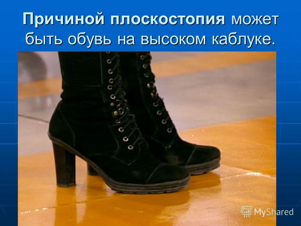 Причиной плоскостопия может быть обувь на высоком каблуке.