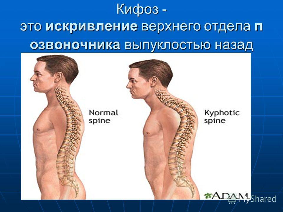 Кифоз - это искривление верхнего отдела п озвоночника выпуклостью назад