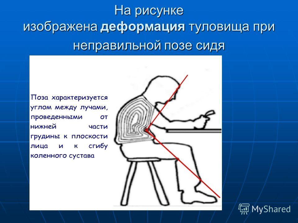 На рисунке изображена деформация туловища при неправильной позе сидя
