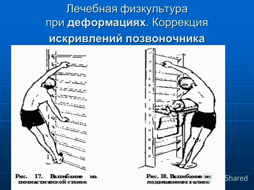 Лечебная физкультура при деформациях. Коррекция искривлений позвоночника