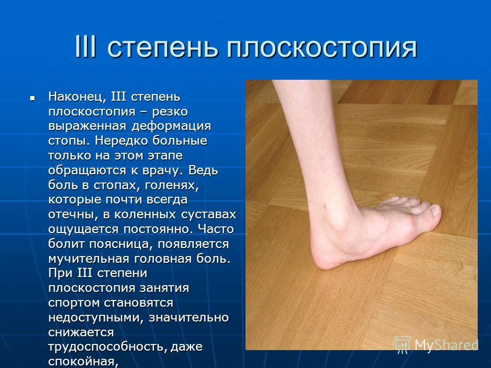 III степень плоскостопия Наконец, III степень плоскостопия – резко выраженная деформация стопы. Нередко больные только на этом этапе обращаются к врачу. Ведь боль в стопах, голенях, которые почти всегда отечны, в коленных суставах ощущается постоянно