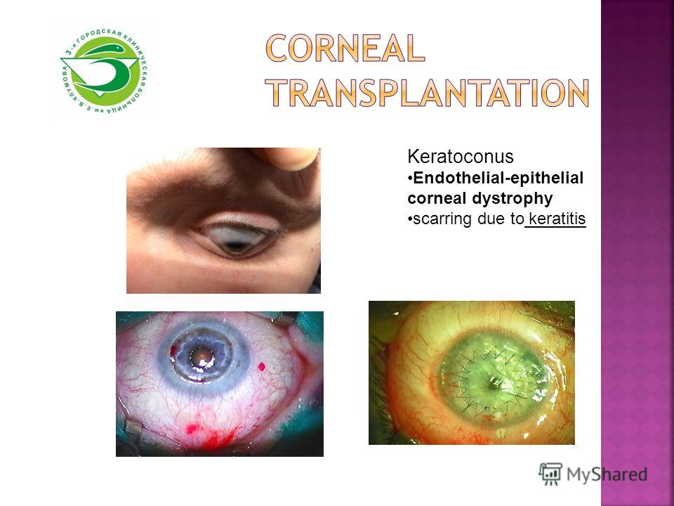Keratoconus Endothelial-epithelial corneal dystrophy scarring due to keratitis