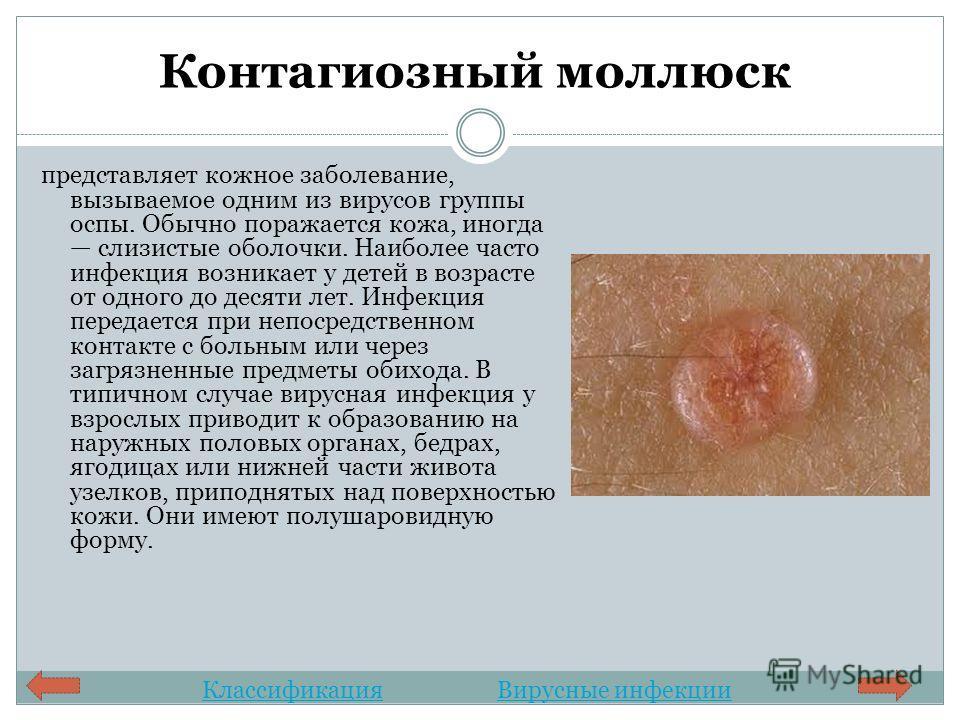 Контагиозный моллюск представляет кожное заболевание, вызываемое одним из вирусов группы оспы. Обычно поражается кожа, иногда слизистые оболочки. Наиболее часто инфекция возникает у детей в возрасте от одного до десяти лет. Инфекция передается при не