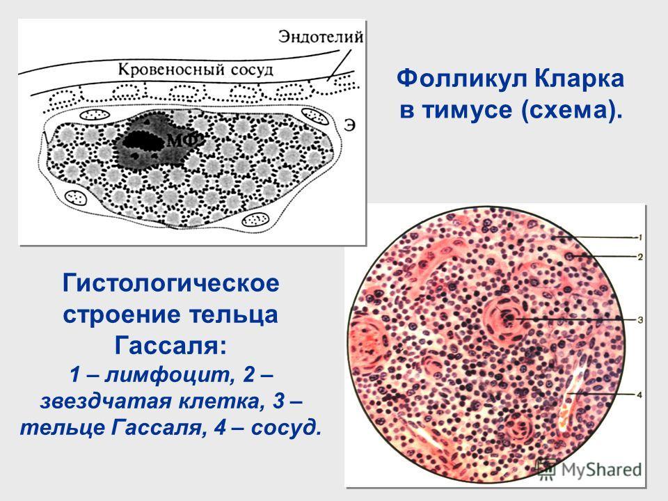 Фолликул Кларка в тимусе (схема). Гистологическое строение тельца Гассаля: 1 – лимфоцит, 2 – звездчатая клетка, 3 – тельце Гассаля, 4 – сосуд.