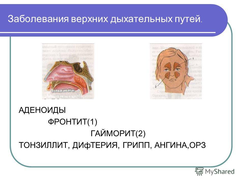 Заболевания верхних дыхательных путей. АДЕНОИДЫ ФРОНТИТ(1) ГАЙМОРИТ(2) ТОНЗИЛЛИТ, ДИфТЕРИЯ, ГРИПП, АНГИНА,ОРЗ